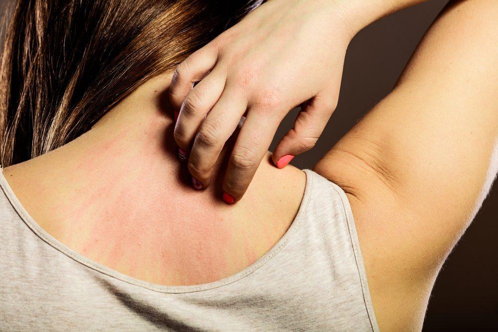 Woman with a Dermatomyositis rash on her back